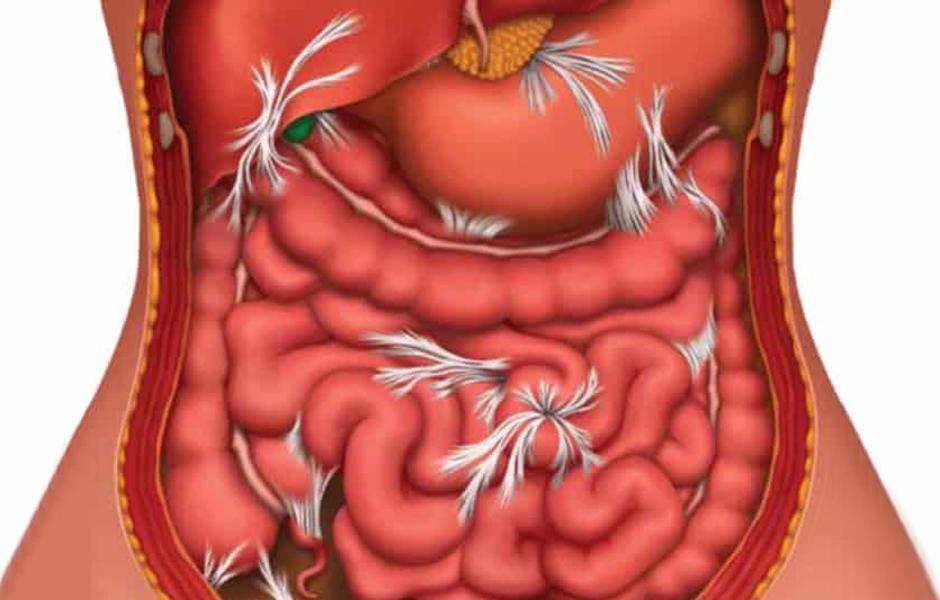 Visceral manipulation manipulation holistic treatment for intestinal issues